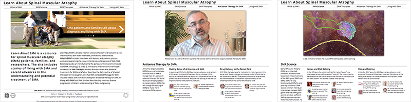 Learn About Spinal Muscular Atrophy